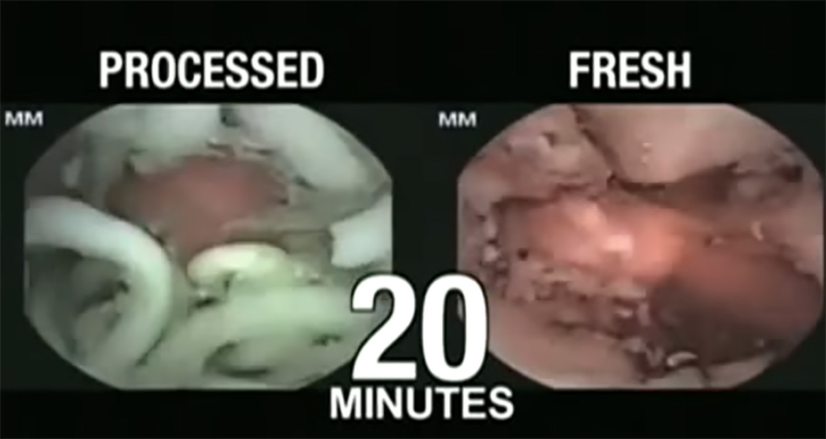 here's what happens inside your stomach after you ingest